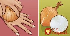 Onion has various great properties. Onion has the ability to absorb viruses, bacteria as well as flu. Onion-Healing power is a great topic for discussion. Arthritis, Home Remedies, Natural Remedies, Type 2 Diabetes Recipe, Diabetes Recipes, Fat Cutter Drink, Plank Challenge, Lower Belly Fat, Natural Antibiotics