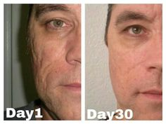 Check out the great results on his skin texture!  These are not photoshopped... the photos are real people who have had real results!  If you don't believe me, you can try it for free and see for yourself! Visit  www.wrinkleresults.nerium.com