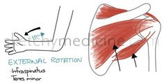 The rotator cuff is composed of four muscles Supraspinatus - abduction Infraspinatus - external rotation Teres minor - external rotation Subscapularis - internal rotation Rotator cuff injuries are ...