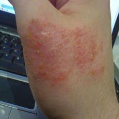 Simple And Effective Natural Remedies For Eczema. I wonder if this is what breaks out on the husband's arms and legs from time to time.