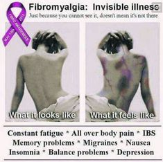 Chronic fatigue syndrome and fibromyalgia often have very similar treatments due to the fact that these two syndromes share a lot of common characteristics. If you are a chronic fatigue syndrome or fibromyalgia patient, the treatments Fibromyalgia Quotes, Fibromyalgia Pain, Chronic Pain, Fibromyalgia Disability, Fibromyalgia Treatment, Endometriosis, Chronic Fatigue Syndrome Diet, Chronic Fatigue Symptoms, Chronic Illness