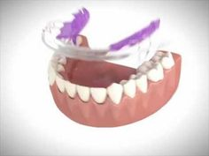 An efficient way to straighten front teeth. The Inman Aligner is a revolutionary way of straightening front teeth in as little as weeks. Inman Aligner, Beautiful Teeth, Teeth Straightening, Front Teeth, 16 Weeks, Orthodontics, Revolutionaries, Teeth Whitening