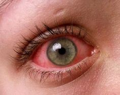 Dry eye cure with Castor Oil
