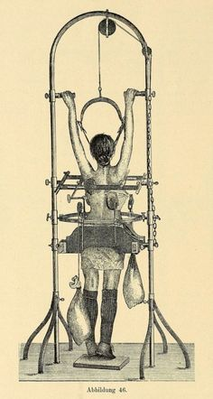 Apparatus for the treatment of scoliosis.