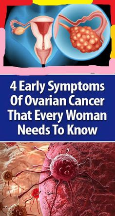 4 Early Symptoms Of Ovarian Cancer That Every Woman Needs To Know What Is Ovarian Cancer, Ovarian Cancer Symptoms, Healthy Skin Care, Healthy Tips, Health And Fitness Articles, Health Fitness, Cancer Sign, Green Life, Aquaponics