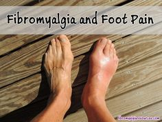 What causes foot pain? When fibromyalgia affects the lower part of the body, this is somewhat different than upper body pain due to the weight bearing nature of both legs and feet. Home Remedies For Gout, Gout Remedies, Natural Remedies, Herbal Remedies, Health Remedies, Kefir, How To Treat Gout, Essential Oils For Gout, Gout Relief