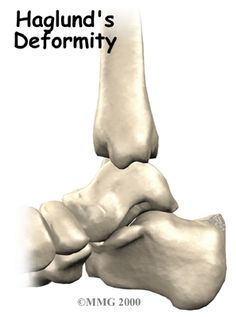 Introduction Sometimes the shape of a bone can cause problems in the foot. One example of this is Haglund's deformity, a condition caused by a prominent bump. Haglunds Deformity, Heel Pain, Plantar Fasciitis, Arthritis, Surgery, Helpful Hints, Massage, Education, Exercises