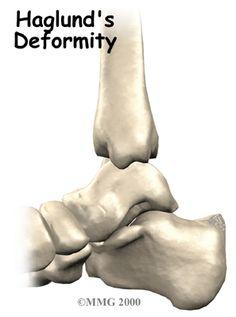 Hanglund's deformity