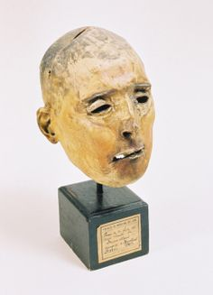 The preserved skin of the vampiric French serial killer Martin Dumollard. He was executed by guillotine in 1862.
