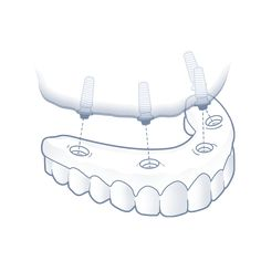Nuvia Dental Implant Center - Dental Implant Options Dental Implant Surgery, Implant Dentistry, Dental Surgery, Cosmetic Dentistry, Infected Ingrown Hair, Restorative Dentistry, Mermaid Theme Birthday, Medical Dental, Health And Beauty Tips