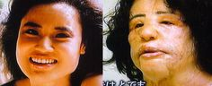 plastic surgery gone wrong - Google Search