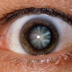 color de ojos y salud