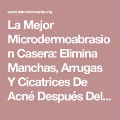 La Mejor Microdermoabrasion Casera: Elimina Manchas, Arrugas Y Cicatrices De Acné Después Del Primer Uso!