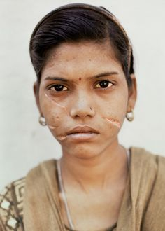 Due to insufficient dowry this young girl's husband lacerated her face with a razor blade. (Gwalior - India) - Adrian Fisk.