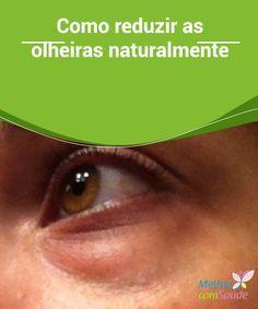 Como #reduzir as olheiras naturalmente A #olheira é uma mancha escura e as #bolsas são uma acumulação de água e #gordura ao redor dos olhos. Aprenda como reduzir as olheiras naturalmente