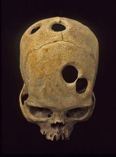Inca Trepanation Inca skull with Human Skeleton, Human Skull, Real Skull, Spanish Armada, Inca Empire, Tattoo Project, Traditional Artwork, Body Reference, Skull And Bones