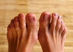 Hammertoes are a contracture of the toes. Treatment typically involves wearing shoes with soft, roomy toe boxes. Left untreated, however, hammertoes can become inflexible & require surgery. www.CompFoot.com
