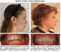 Braces can change facial structure