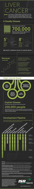 Liver Cancer: Development Pipeline  clinicalresources.com #health #healthcare #infographic