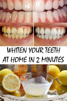 Find out how you can make your own whitening treatments at home in just 2 minutes with no more than 2 ingredients. ... yeah, except I have a dentist in my family who says that even lemon water eats away at your actual tooth enamel, so I wouldn't think this is a good idea.