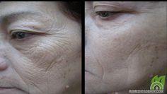 Mascarilla casera anti arrugas y eliminar manchas en 7 días!!!