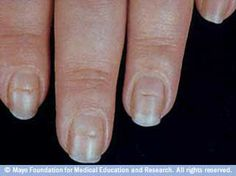 Fingernail problems not to ignore-Beau's lines-Conditions associated with Beau's lines include uncontrolled diabetes and peripheral vascular disease, as well as illnesses associated with a high fever, such as scarlet fever, measles, mumps and pneumonia. Beau's lines can also be a sign of zinc deficiency.