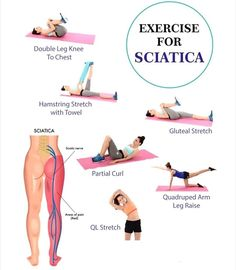 Sciatica is the term used to describe nerve pain in the buttocks, legs and feet. It is caused when the sciatic nerve – the longest nerv. Chronic Sciatica, Yoga For Sciatica, Sciatica Pain Relief, Sciatic Pain, Pinched Sciatic Nerve, Sciatica Stretches Pregnancy, Pinched Nerve Relief, Sciatica Massage, Severe Sciatica