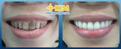 Răng sứ là lựa chọn làm đẹp cho các hàm răng lệch lạc, sâu, mẻ,... Thế nhưng trong các loại răng sứ nên chọn loại nào là tốt nhất? Làm răn...