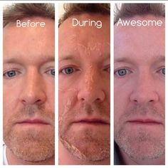 #VIPEEL #RESULTS #BEFORE & #AFTER #PHOTOS! Facial peels are not just for the ladies! Men can get them too!