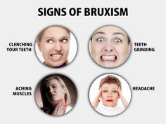 Dental Implant, Crowns Cosmetic Dentistry in Dumfries, VA Teeth Implants, Dental Implants, Jaw Clenching, Restorative Dentistry, Dental Humor, Dental Facts, Tooth Sensitivity, Dental Cosmetics, Dental Bridge