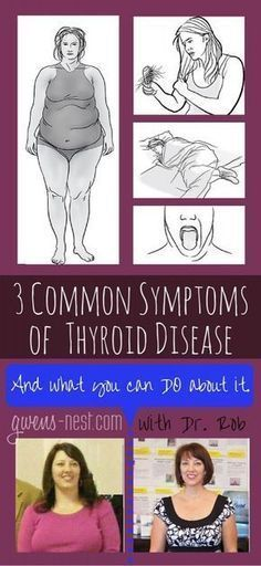 Hypothyroidism Diet - common symptoms of thyroid disease rob pin Thyrotropin levels and risk of fatal coronary heart disease: the HUNT study. Thyroid Disease Symptoms, Hypothyroidism Diet, Thyroid Diet, Thyroid Health, Autoimmune Disease, Parathyroid Symptoms, Thyroid Cure, Symptoms Of Thyroid Problems, Home Remedies