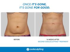 Once the fat cells are eliminated with the CoolSculpting procedure, they're gone for good! #CoolSculpting #FatFreezing   Rules of Engagement: http://on.fb.me/1S8AN0v