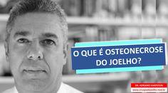 www.cirurgiadejoelho.med.br / O DR. ADRIANO KARPSTEIN, médico ortopedista especialista em Cirurgia de Joelho e Medicina Esportiva, explica que O QUE É OSTEONECROSE DO JOELHO. / #joelho #cirurgiadejoelho