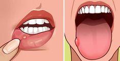 Cos'è l'acido folico? Si tratta di un tipo di vitamina B che aiuta il corpo a produrre e riparare il DNA, e a produrre globuli rossi. L'acido folico è idrosolubile, e non può depositarsi nel nostro organismo per lunghi periodi di tempo, venendo quindi espulso attraverso l'urina. Ciò vuol dire che abbiamo bisogno di fornire costantemente al nostro organismo dosi adeguate di acido folico. La carenza di questo nutriente essenziale, spesso causata da una alimentazione poco varia, è molto diffusa…