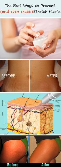 """ The Best Ways to Prevent (and even erase!) Stretch Marks "" says pinterest"