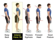 Anterior pelvic tilt affects almost anyone who sits a lot. Practically, your butt sticks out and your gut protrudes. Learn how to fix it and look great.
