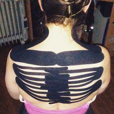 Detonizing of upper and midle part of the trapezius muscle. Specialist: Pavels Kolomijecs #Kinesio #Tape #Back