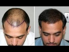 Hair Transplant is surgery to restore hair back. Dr. J.P Walia is best hair transplant Surgeon in India.