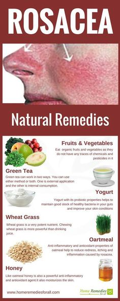 rosacea home remedies infographic