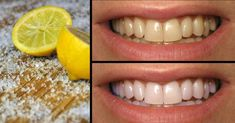 Use Lemons To Cure Oral Issues!