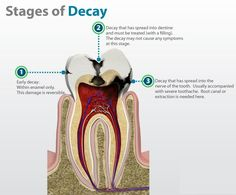 Tooth Decay Isn't Just Ruining Your Mouth—It's Ruining Your Life