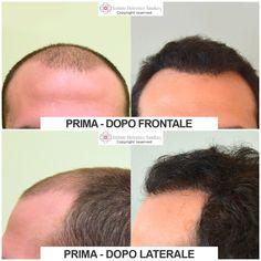 Prima e dopo Autotrapianto Capelli · I  risultati di Leonardo dimostrano  come l Autotrapianto F.U.E. sia una soluzione incredibilmente efficace 20f583805ace