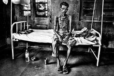 'Kala azar, fiebre negra'. David Rengel