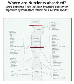 If you've had roux en y surgery, this chart clarifies why you need supplements - forever. Good stuff.