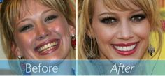 The placement of #veneers can make such a big difference to your #smile, appearance and facial features!  If you dream of that permanent #HollywoodSmile, stop the waiting come to #Lookswoow and let us take care of you!  Your looks are our priority to make you look woow!