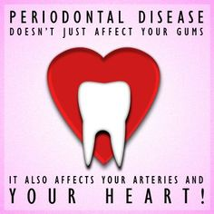 #Periodontal disease doesn't just affect your gums; it also affects your arteries and your #heart!