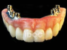 Ceramic Caps are the best solution for the broken teeth. Keep your smile on your face with idocdentallab. Call us at 1.877.388.IDOC(4362)