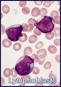 Lymphoblasts