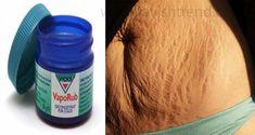 Comment faire pour utiliser Vicks VapoRub Pour obtenir se débarrasser de la graisse de l'estomac accumulée et la cellulite, Éliminer les vergetures et avoir la peau la plus ferme