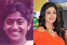 Bollywood Stars Before and After Cosmetic Surgery: With a few tweaks, amazing style, flawless luminescent makeup completely transform yourself.